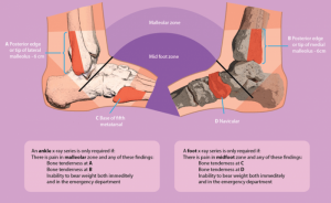 The Ottawa Ankle Clinical Prediction Rules