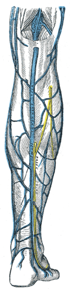 derin ven trombozu,derin ven trombozu nedir,DVT