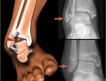ayak kırılması,ayak bileği kirilmasi