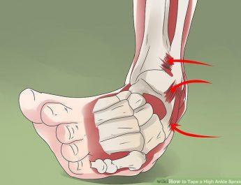 ayak burkulmasi,ayak burkulmasi nedenleri