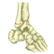 ayak bileği kırılması,ayak kırılması tedavi
