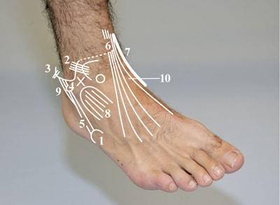ayak kırılması,ayak kırığı tedavi