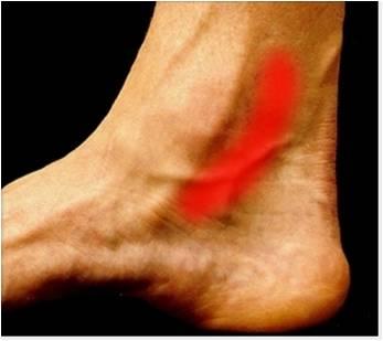 ayak bileği iç ağrısı