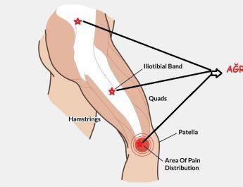 iliotibial band sendromu